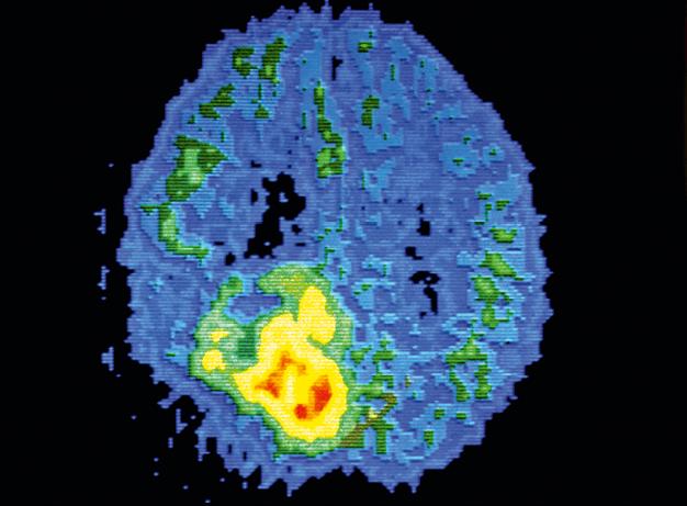 Tomographie d'un cerveau