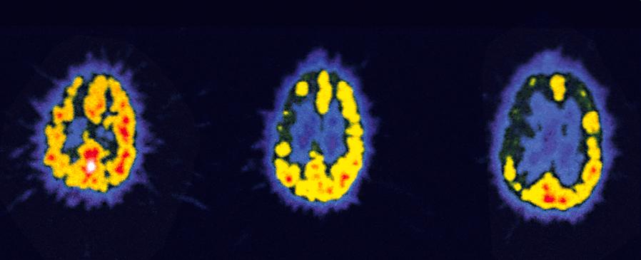 Tomographie cérébrale