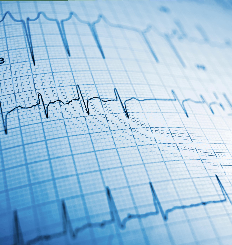 Electro-cardiogramme - Continuité