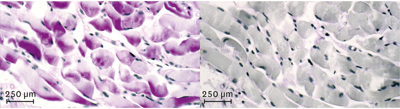 <stamp theme='svt-green1'>Doc. 1</stamp> Observation d'un muscle avant (à gauche) et après (à droite) un effort physique de quelques minutes au microscope optique.