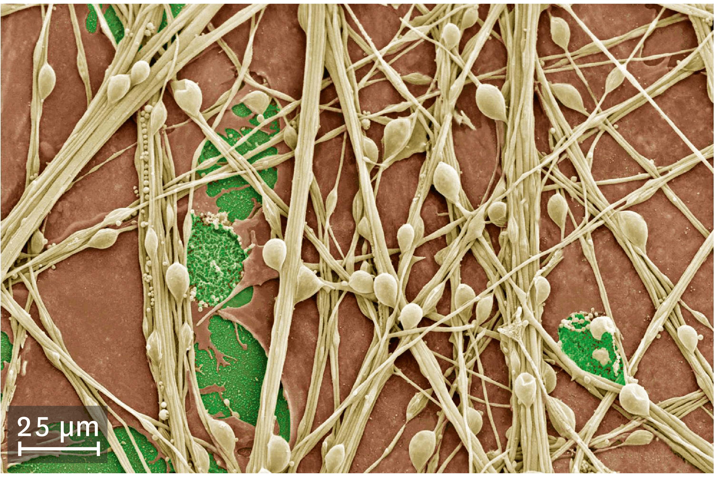 <stamp theme='svt-green1'>Doc. 2</stamp> Une culture de cellules nerveuses observées au microscope électronique à balayage.