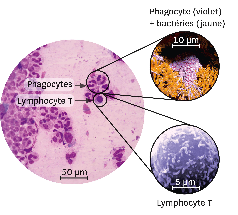 <stamp theme='svt-green1'>Doc. 4</stamp> Différents types de leucocytes sur le site d'une infection.