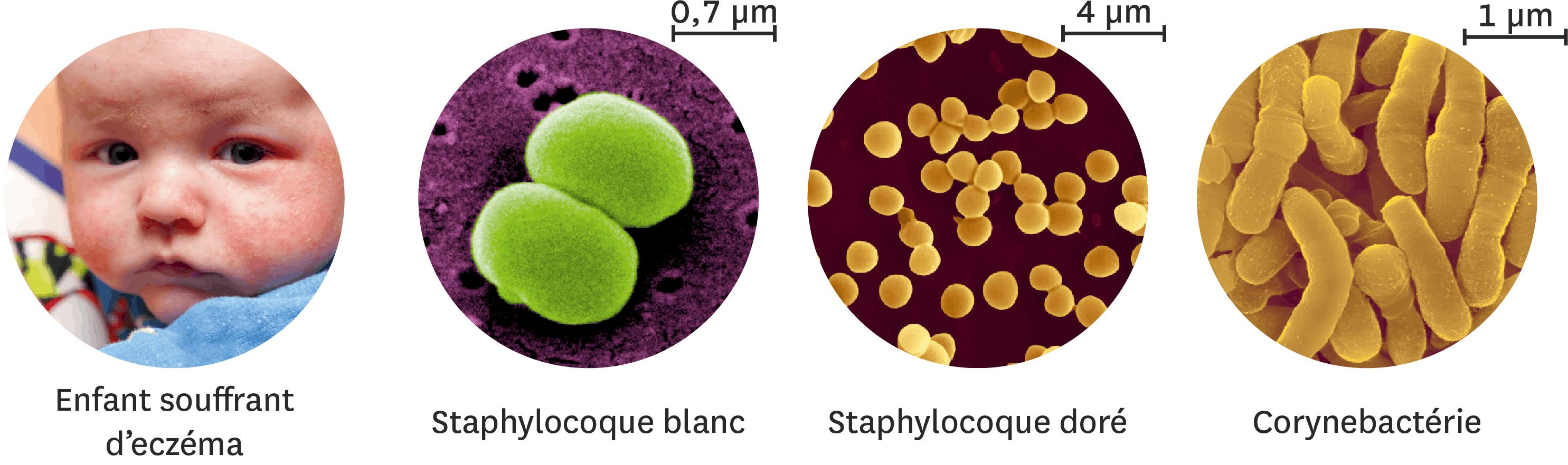 <stamp theme='svt-green1'>Doc. 4</stamp> Quelques espèces observées sur la peau humaine, chez un enfant souffrant d'eczema.