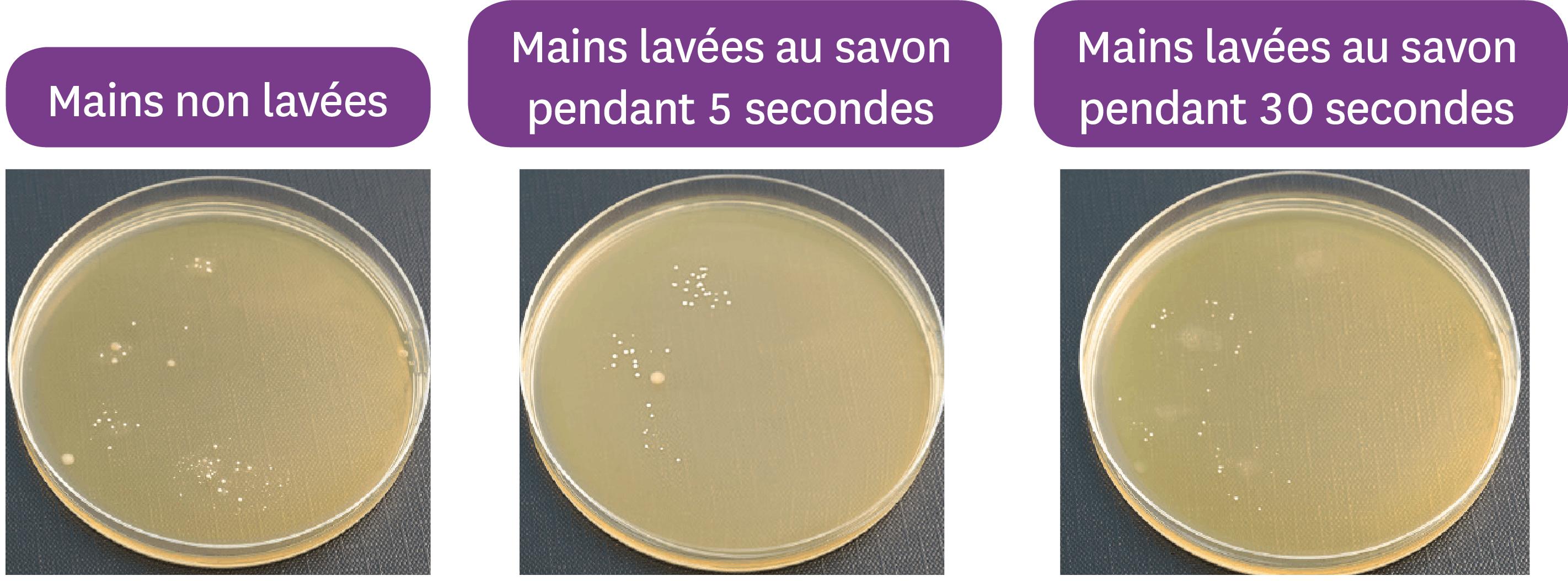 <stamp theme='svt-green1'>Doc. 4</stamp> L'effet du lavage des mains au savon sur le microbiote cutané.
