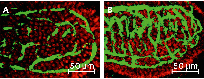<stamp theme='svt-green1'>Doc. 2</stamp> Une observation des capillaires chez des souris sans microorganismes dans l'appareil digestif (A) ou 10 jours après inoculation (ajout) de bactéries de souris normales (B).