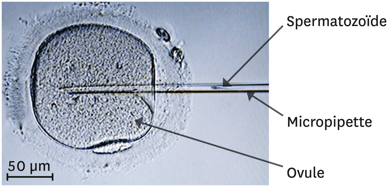 <stamp theme='svt-green1'>Doc. 8</stamp> Le principe de l'ICSI (injection intracytoplasmique de spermatozoïde).