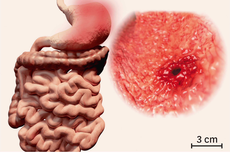 <stamp theme='svt-green1'>Doc. 7</stamp> L'ulcère gastrique, une destruction de la muqueuse de l'estomac.