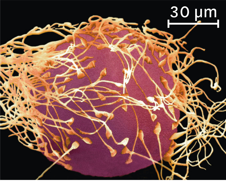 <stamp theme='svt-green1'>Doc. 7</stamp> Une observation au microscope électronique d'une fécondation (image colorisée).