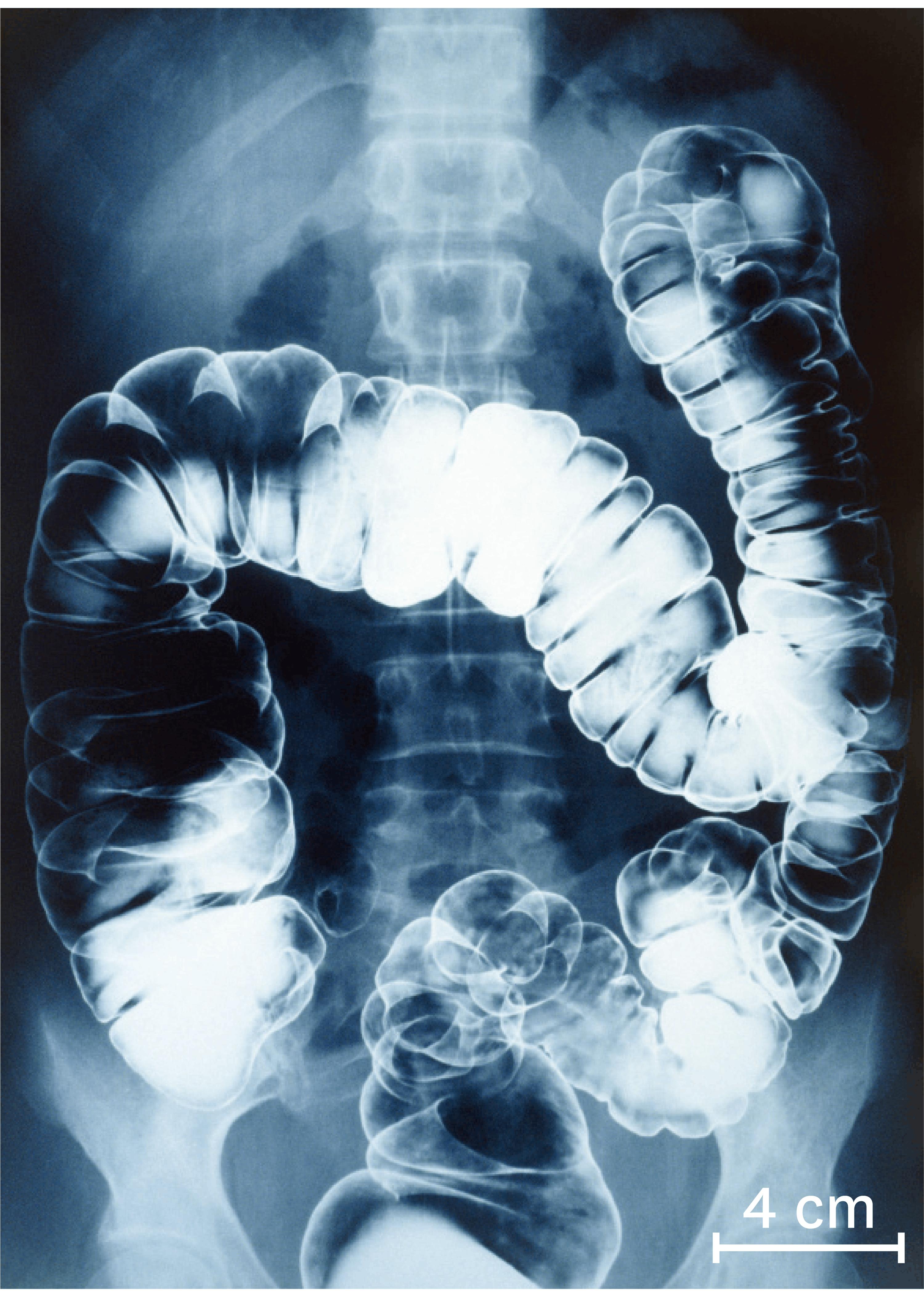 <stamp theme='svt-green1'>Doc. 6</stamp> Une radiographie du gros intestin chez un être humain 10 à 15 heures après ingestion du produit.