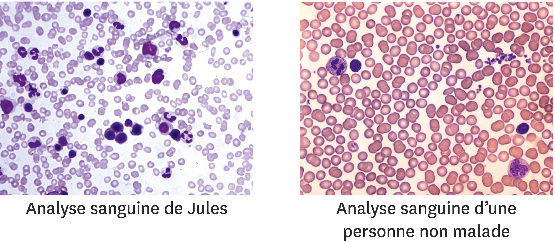 <stamp theme='svt-green1'>Doc. 1</stamp> La comparaison du sang de Jules avec celui d'une personne non malade.
