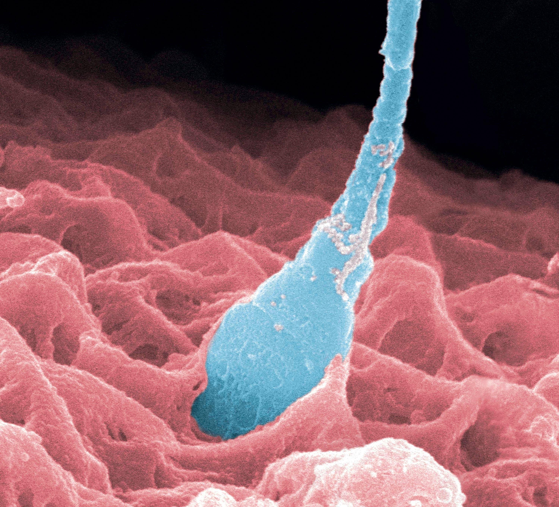 <stamp theme='svt-green1'>Doc. 2</stamp> Une fécondation observée au microscope électronique (image colorisée).