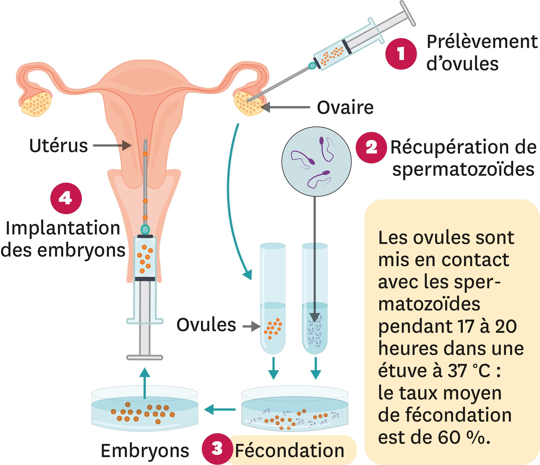 <stamp theme='svt-green1'>Doc. 7</stamp> Le principe de la FIVETE (Fécondation In Vitro Et Transfert d'Embryon).