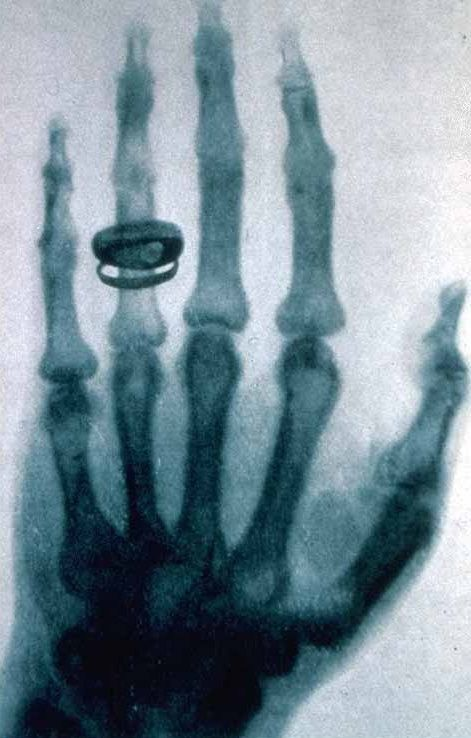 Une des premières radiographies effectuées par Röntgen.