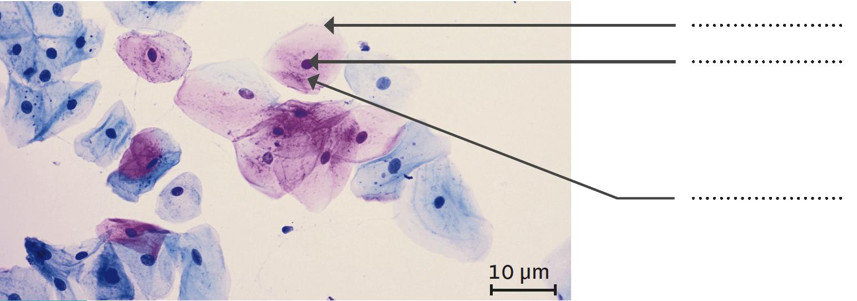 Observation microscopique de cellules prélevées dans le col de l'utérus