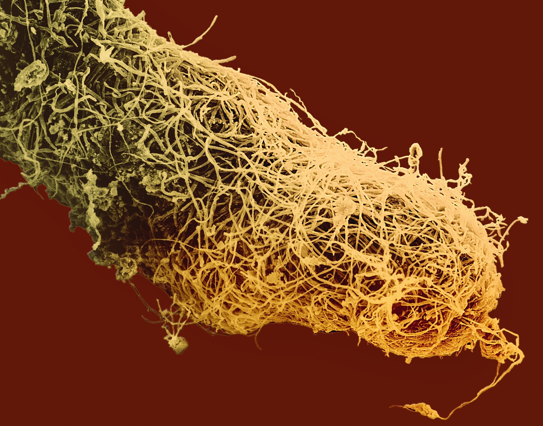 <stamp theme='svt-green1'>Doc. 5</stamp> Des mycorhizes sur des racines d'eucalyptus observées au microscope électronique à balayage.