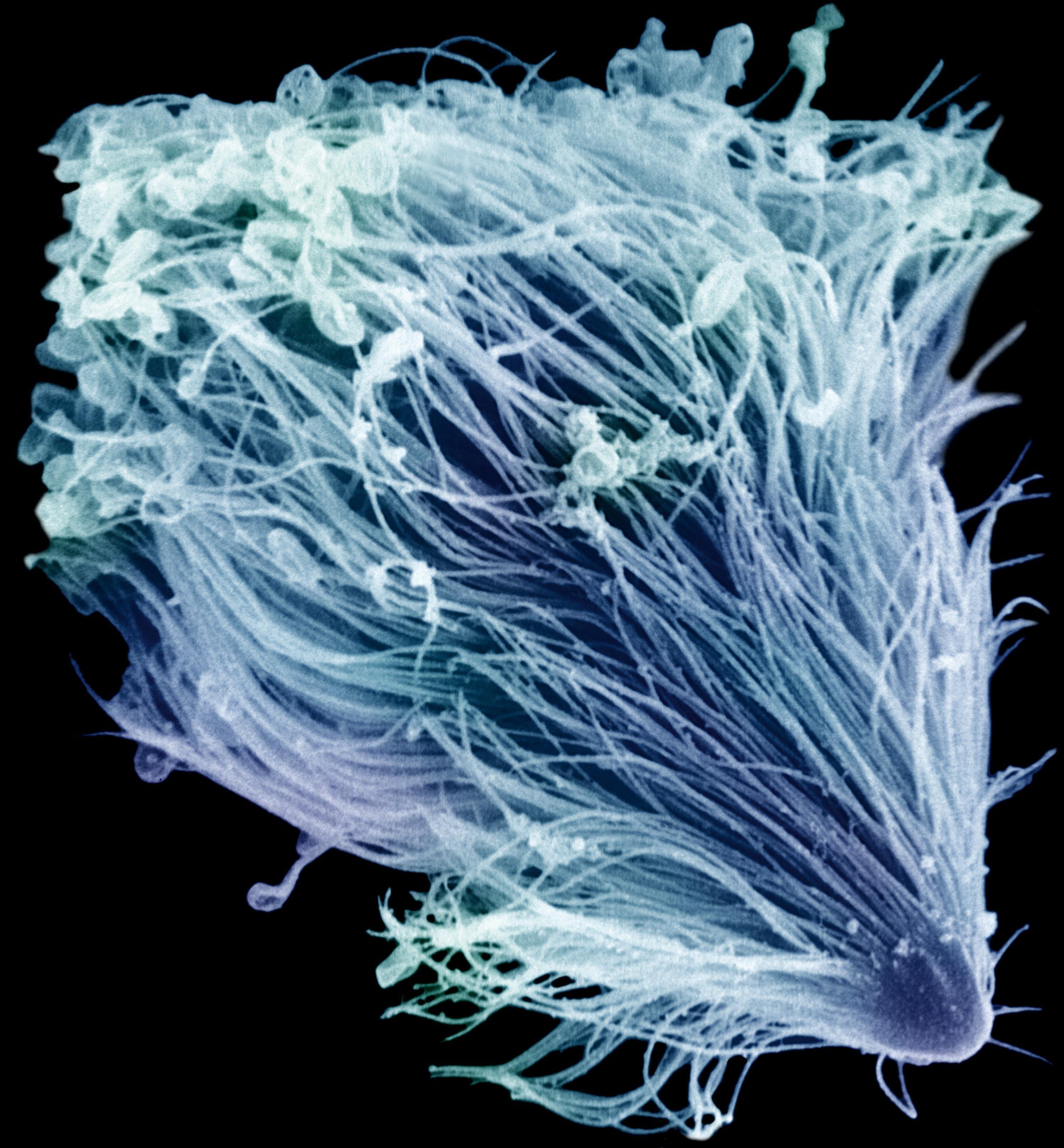 <stamp theme='svt-green1'>Doc. 3</stamp> Une observation au microscope optique d'un microorganisme unicellulaire présent dans le tube digestif des termites : Trichonympha.