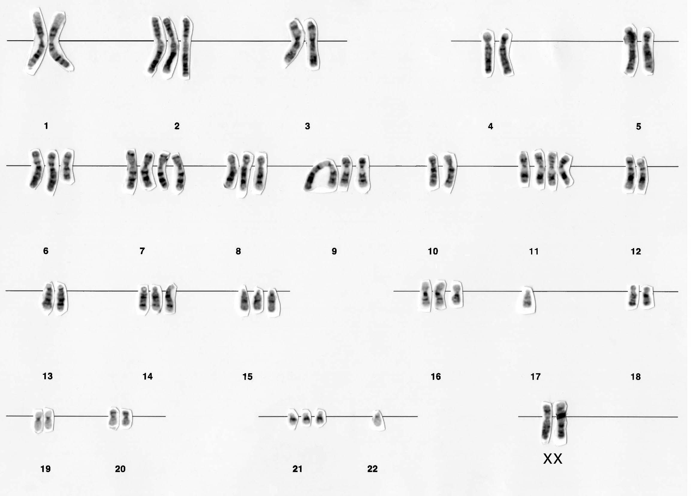 Caryotype de cellule cancéreuse d'un être humain.