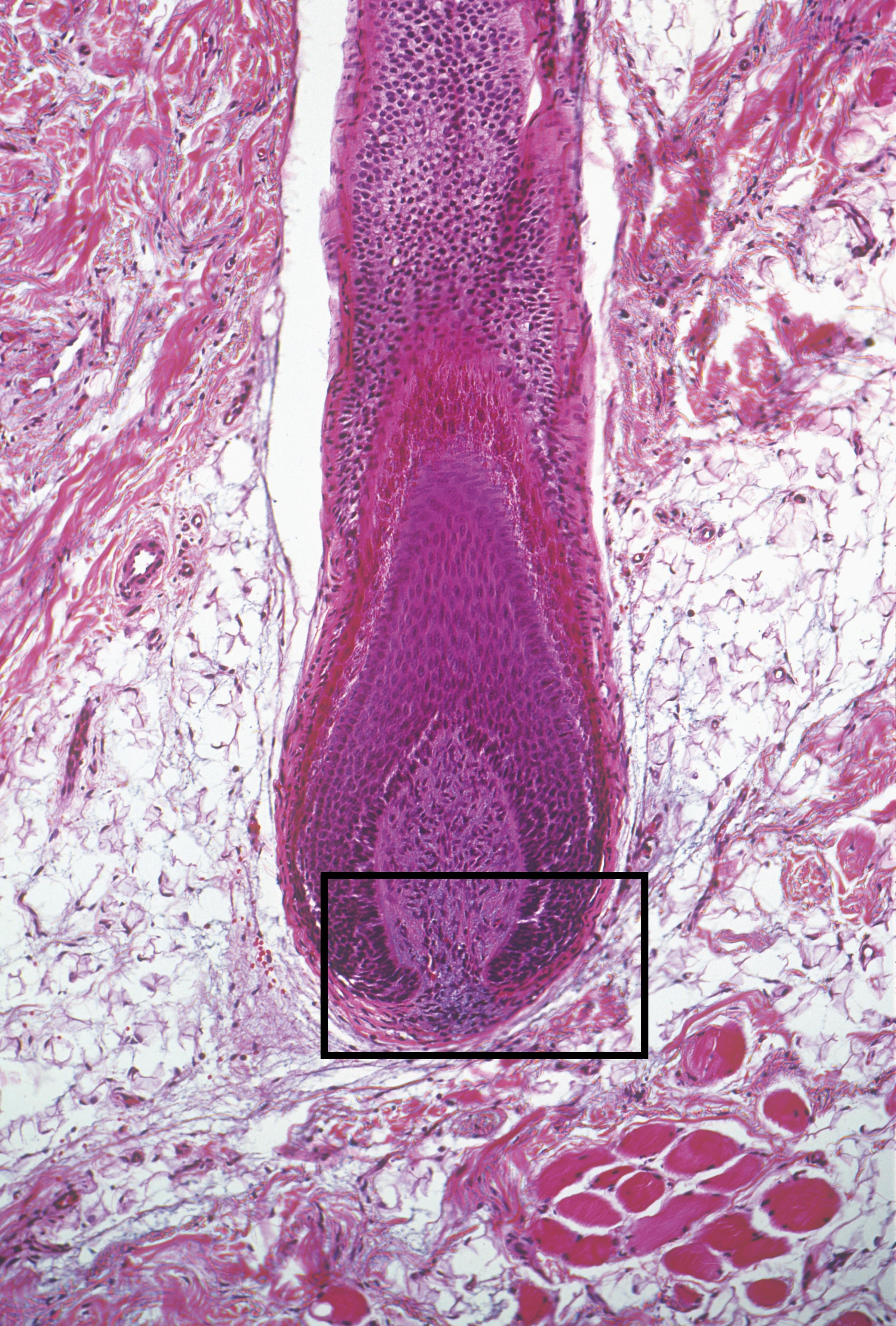 Base d'un cheveu observée au microscope (grossissement : X52).