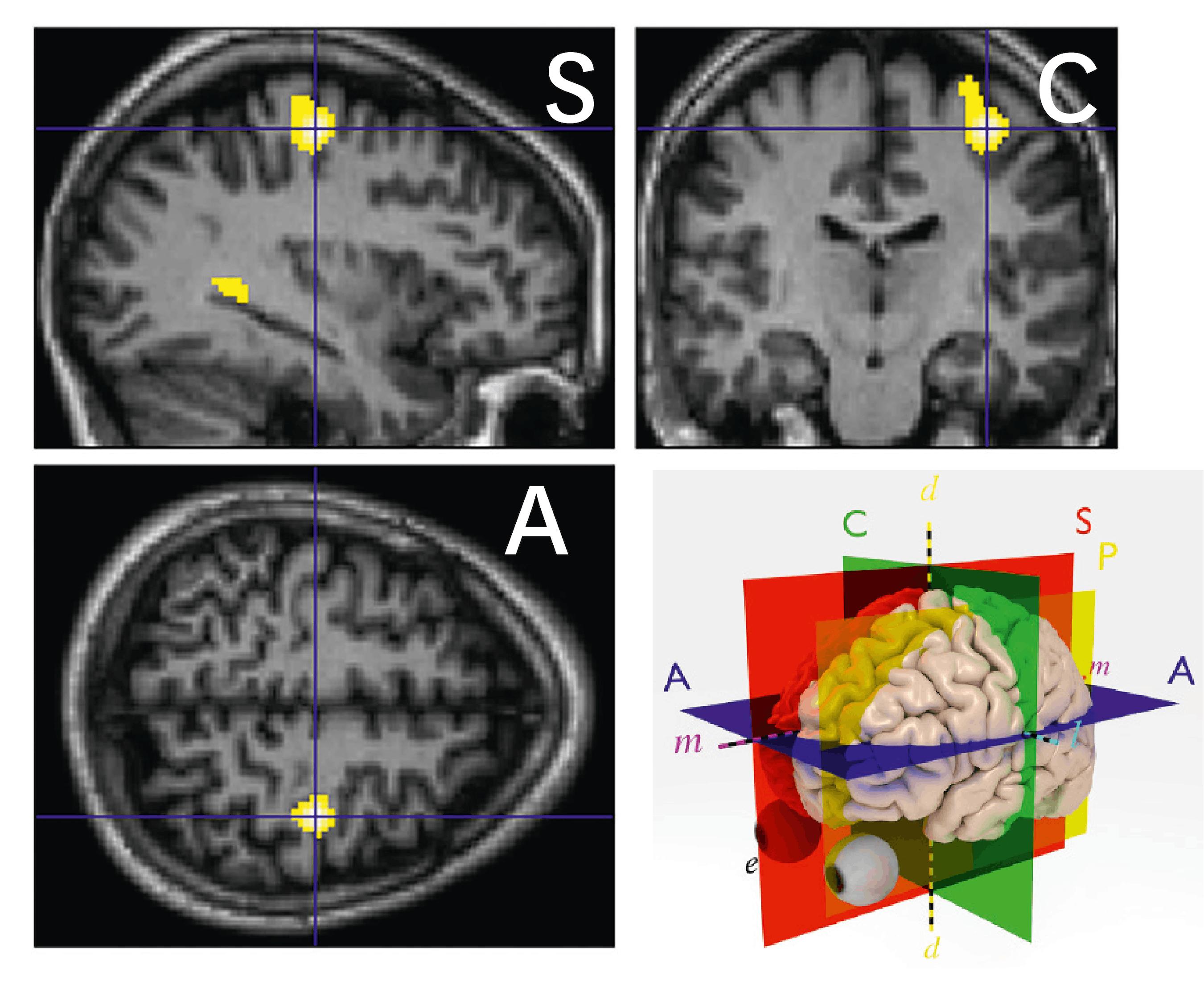 <stamp theme='svt-green1'>Doc. 5</stamp> Le cerveau du guitariste lorsqu'il utilise sa main gauche. Les zones jaunes sont des zones plus actives qu'en temps normal (main immobile). A = Axial ; S = Sagittal et C = Coronal.