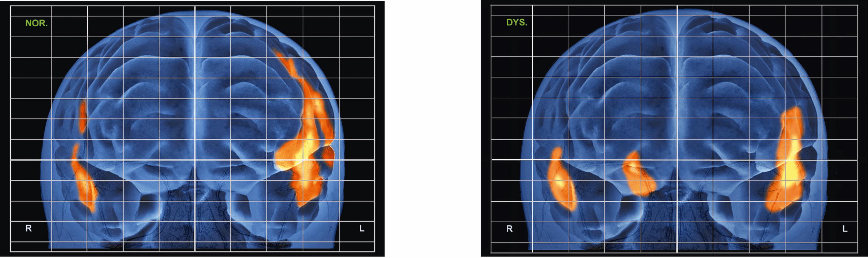 <stamp theme='svt-green1'>Doc. 4</stamp> Les activations cérébrales d'un patient témoin (gauche) ou dyslexique (droite) en train de lire. Il s'agit d'une reconstruction 3D du cerveau.