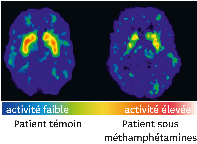 <stamp theme='svt-green1'>Doc. 5</stamp> Des coupes de cerveau d'un patient témoin et d'une personne consommant des méthamphétamines.