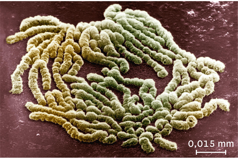 <stamp theme='svt-green1'>Doc. 6</stamp> Une observation au microscope électronique à balayage des chromosomes au milieu de la division cellulaire.