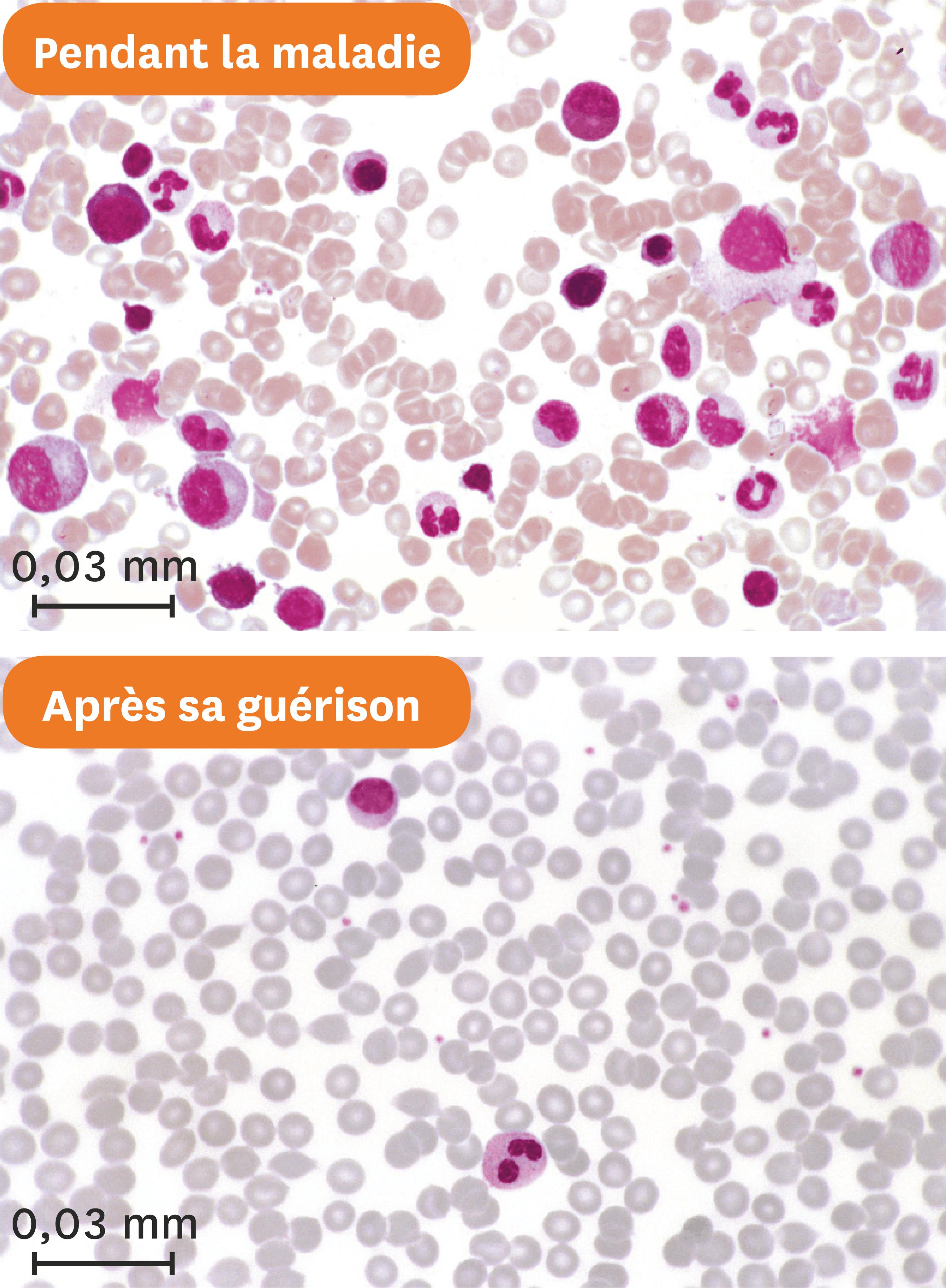 <stamp theme='svt-green1'>Doc. 4</stamp> Les frottis sanguins d'Estelle pendant sa maladie puis après sa guérison.