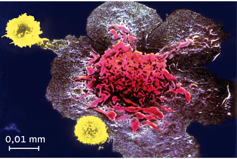 <stamp theme='svt-green1'>Doc. 3</stamp> La destruction d'une cellule infectée par des lymphocytes T observée au microscope électronique à balayage (image colorisée).