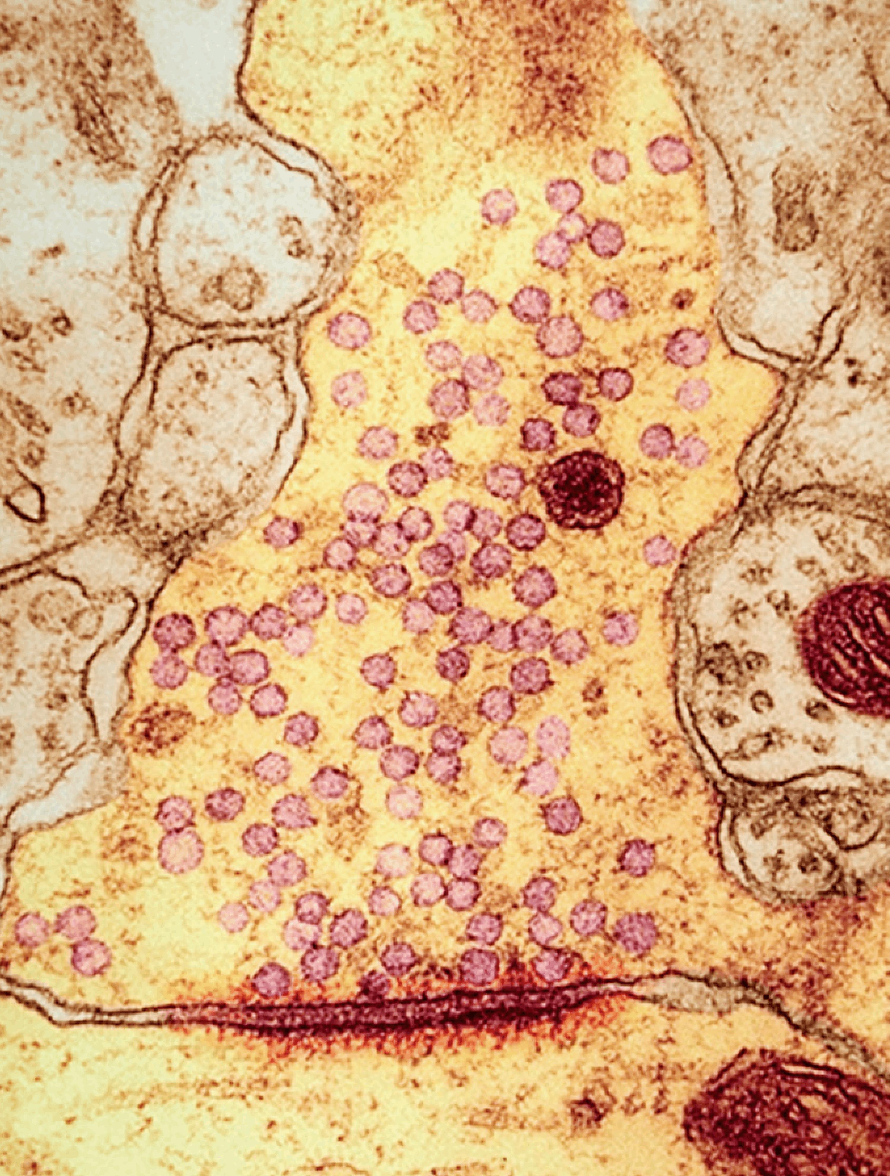 <stamp theme='svt-green1'>Doc. 5</stamp> Une observation au microscope électronique d'une synapse.