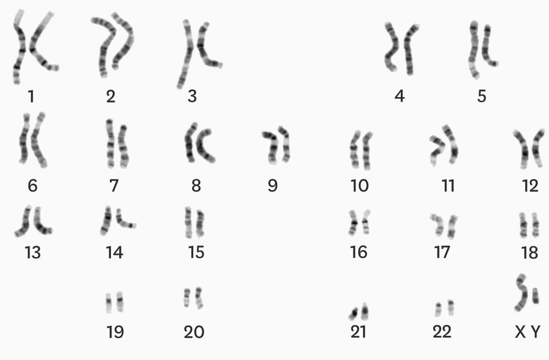 <stamp theme='svt-green1'>Doc. 4</stamp> Le caryotype d'une cellule œuf issue de la fécondation.