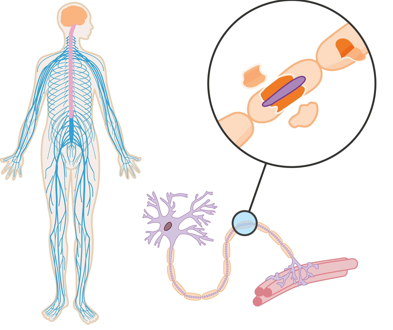 <stamp theme='svt-green1'>Doc. 2</stamp> Le système nerveux d'une personne atteinte de sclérose en plaques.