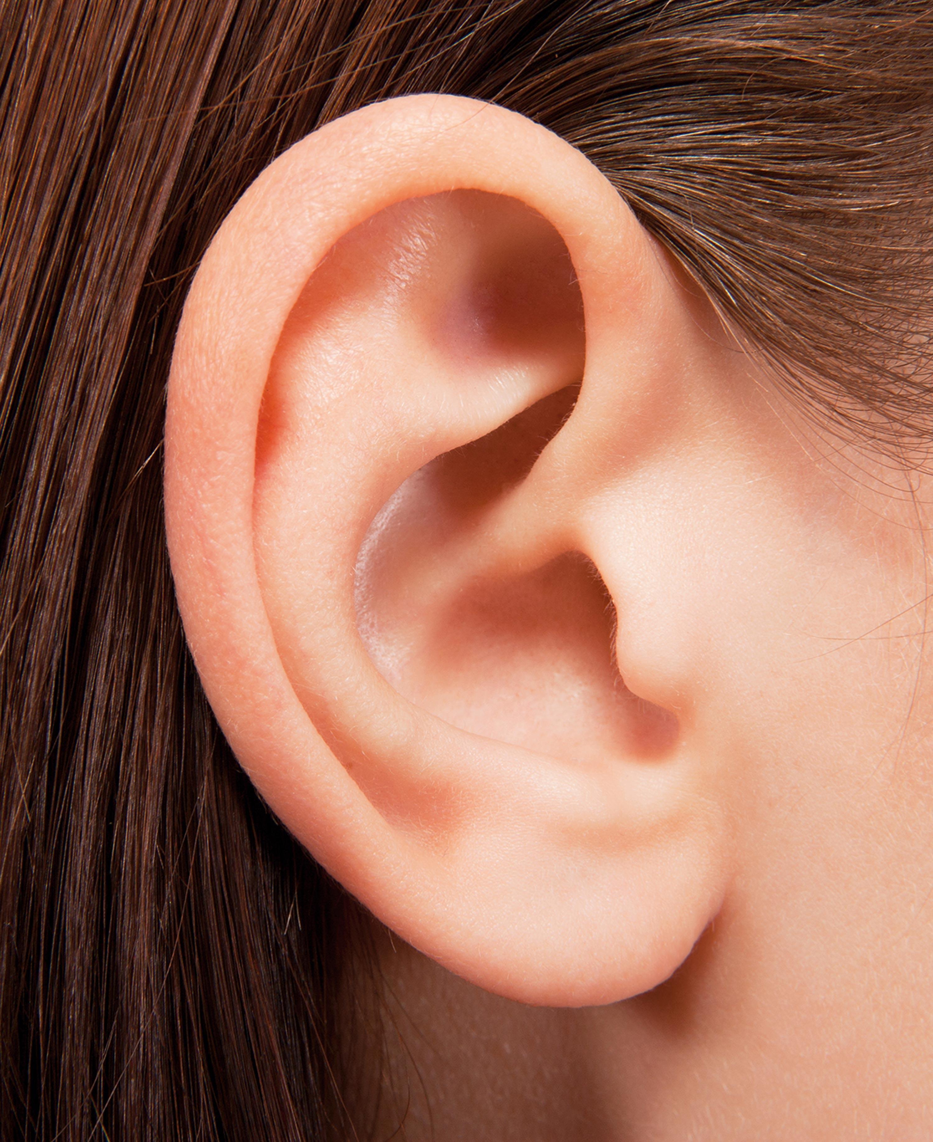 <stamp theme='svt-green1'>Doc. 2</stamp> Un lobe d'oreille libre.