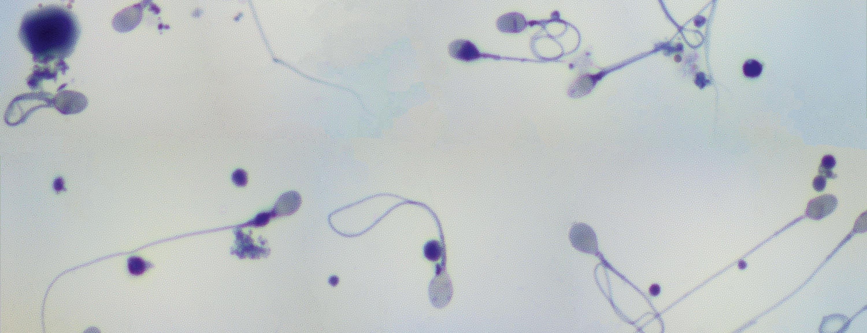 <stamp theme='svt-green1'>Doc. 1</stamp> Observation de spermatozoïdes humains au microscope optique, grossis 800 fois.