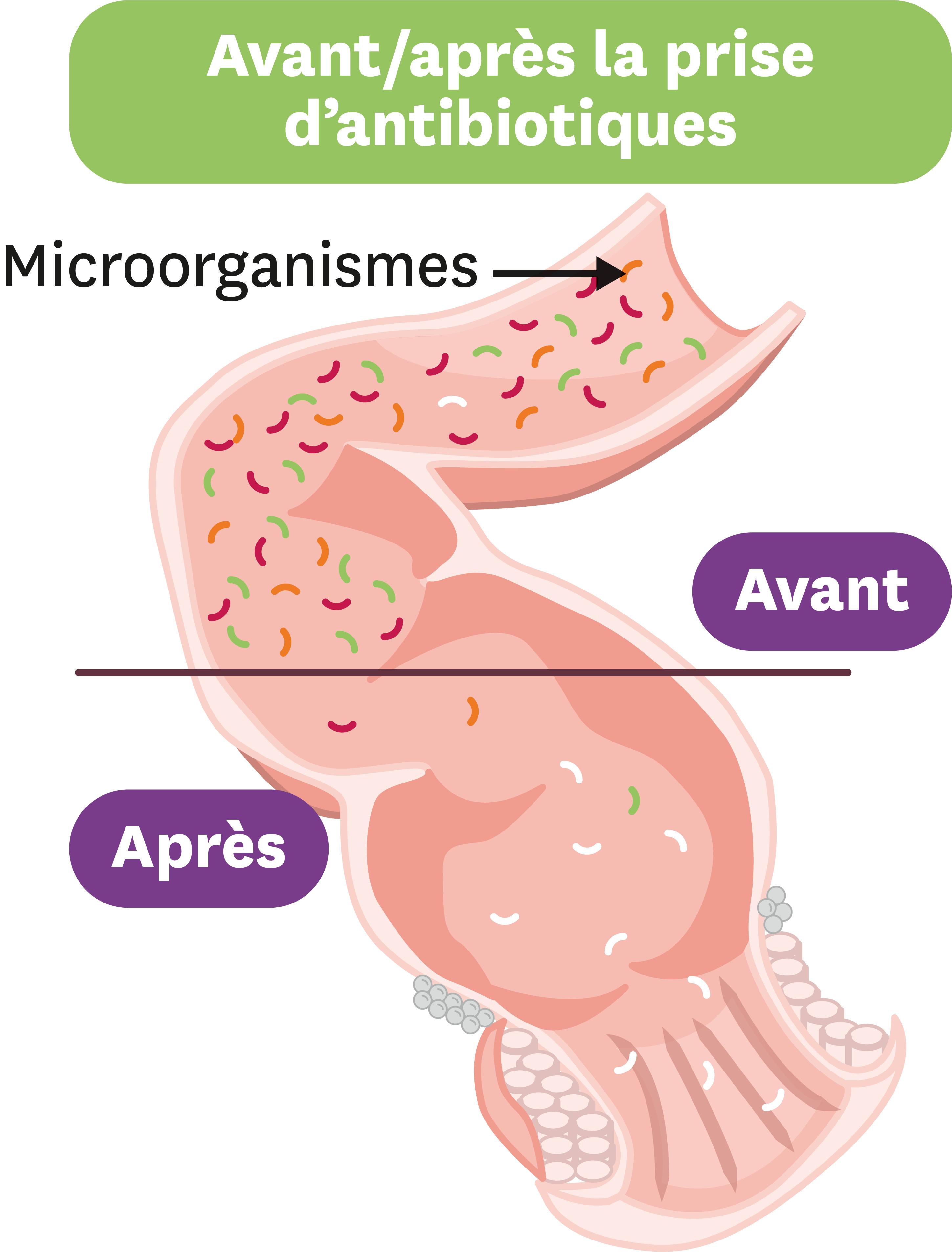<stamp theme='svt-green1'>Doc. 4</stamp> L'effet des antiobiotiques sur le microbiote intestinal.
