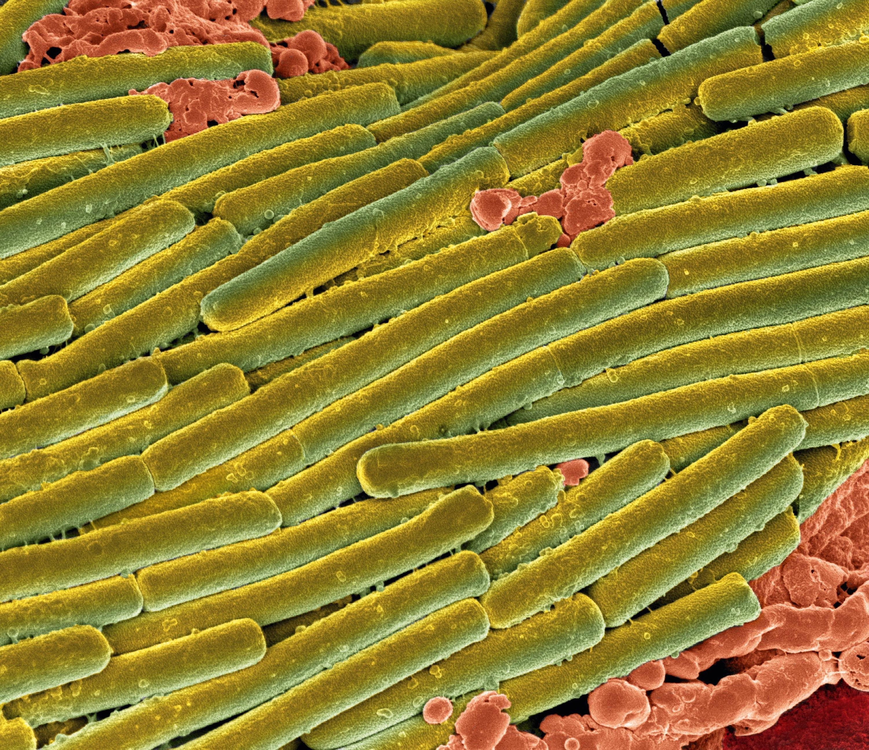 <stamp theme='svt-green1'>Doc. 3</stamp> Des bactéries Clostridium difficile (en vert) couvrant des bactéries du microbiote (en rouge) lors d'une colite (image colorisée).