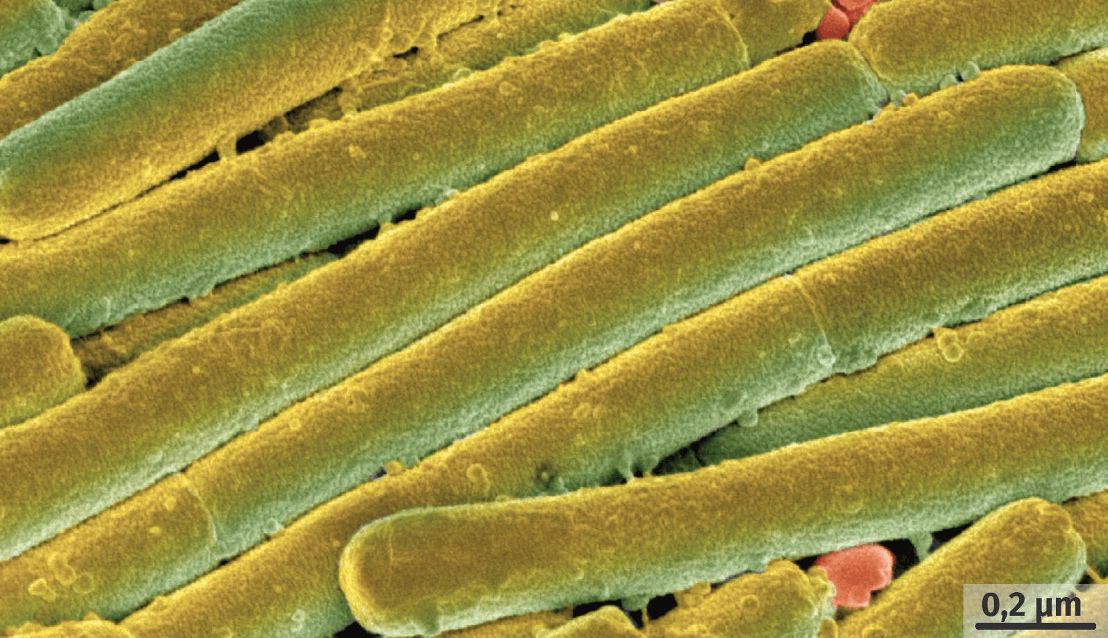 La bactérie Clostridium difficile observée au microscope électronique à balayage