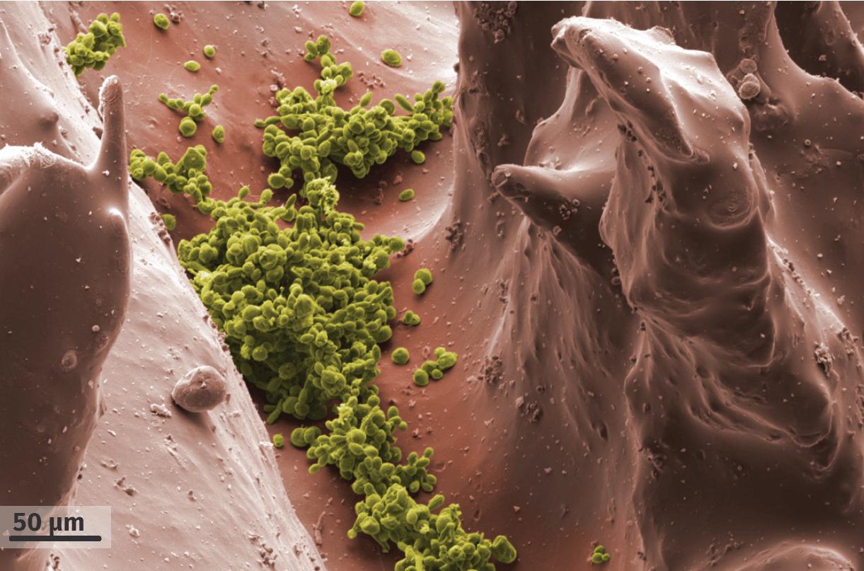Observation au microscope électronique à balayage de Candida albicans à la surface de la langue