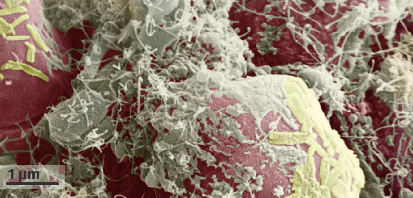 Cellules intestinales humaines recouvertes de leur microbiote (MEB, image colorisée).