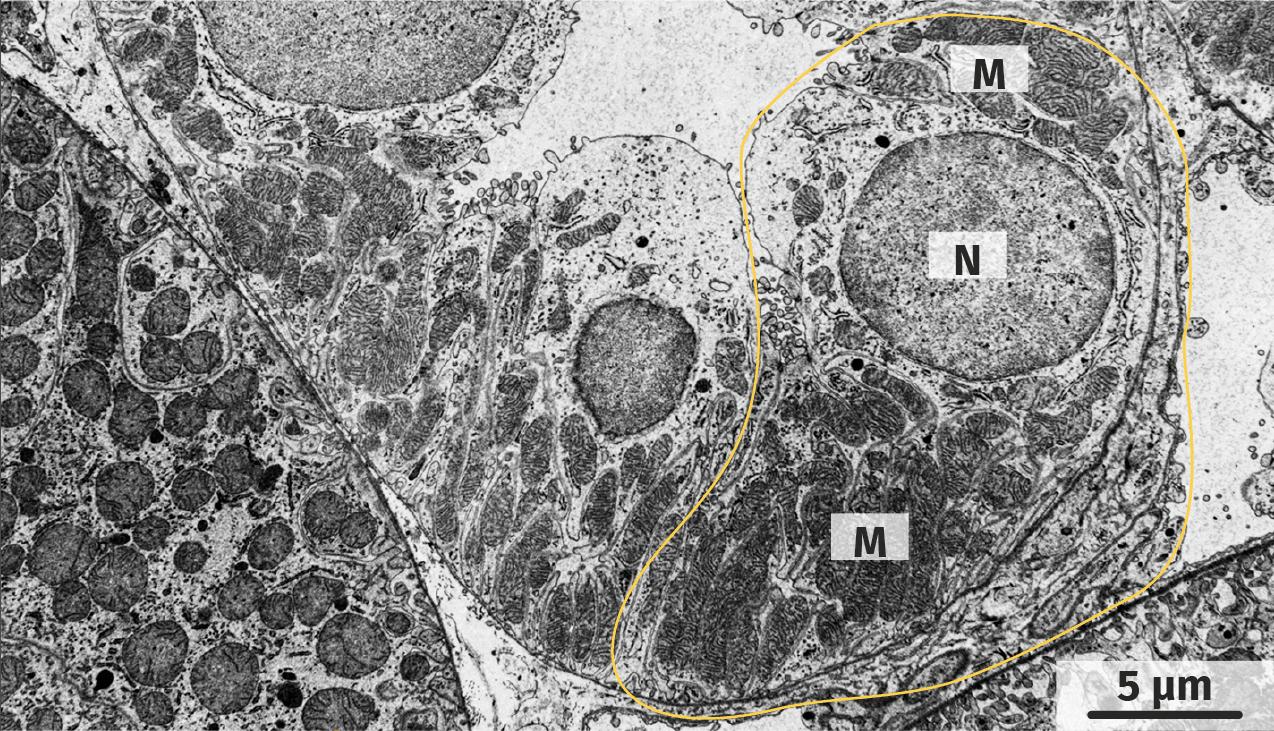 Tubule rénal observé au microscope électronique à transmission