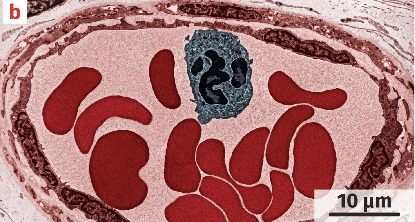 Coupe transversale de vaisseau sanguin