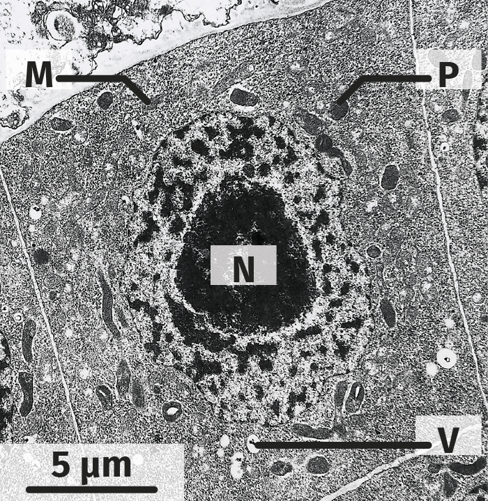 Cellule végétale indifférenciée (MET)