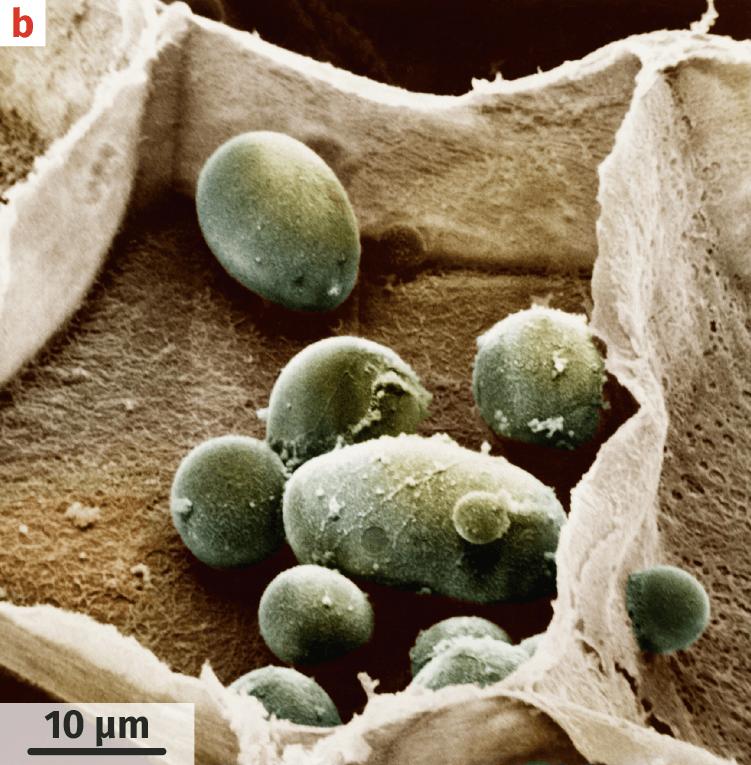 Cellule de tubercule de pomme de terre