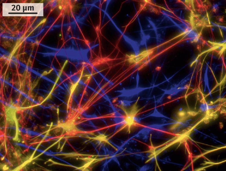 Neurones dérivés de cellules souches embryonnaires et obtenus en laboratoire.