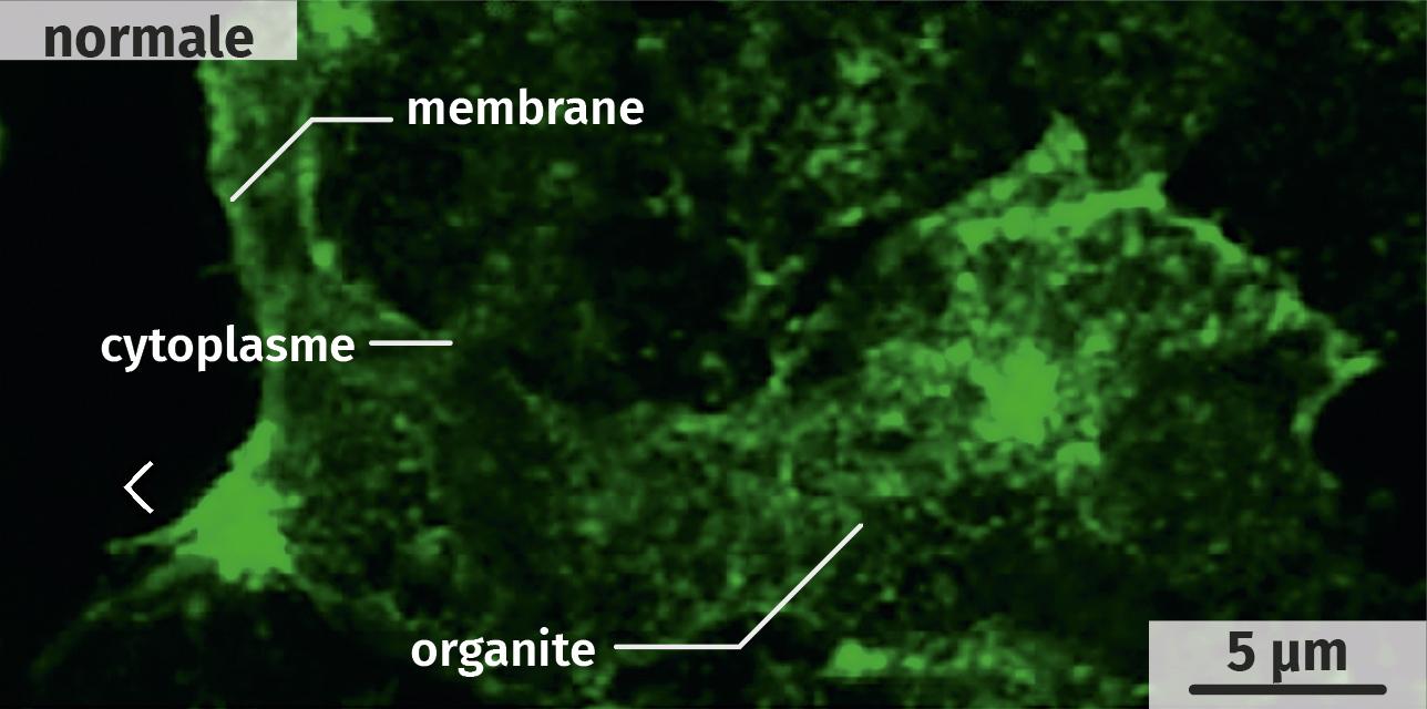 Localisation cellulaire de la protéine CFTR