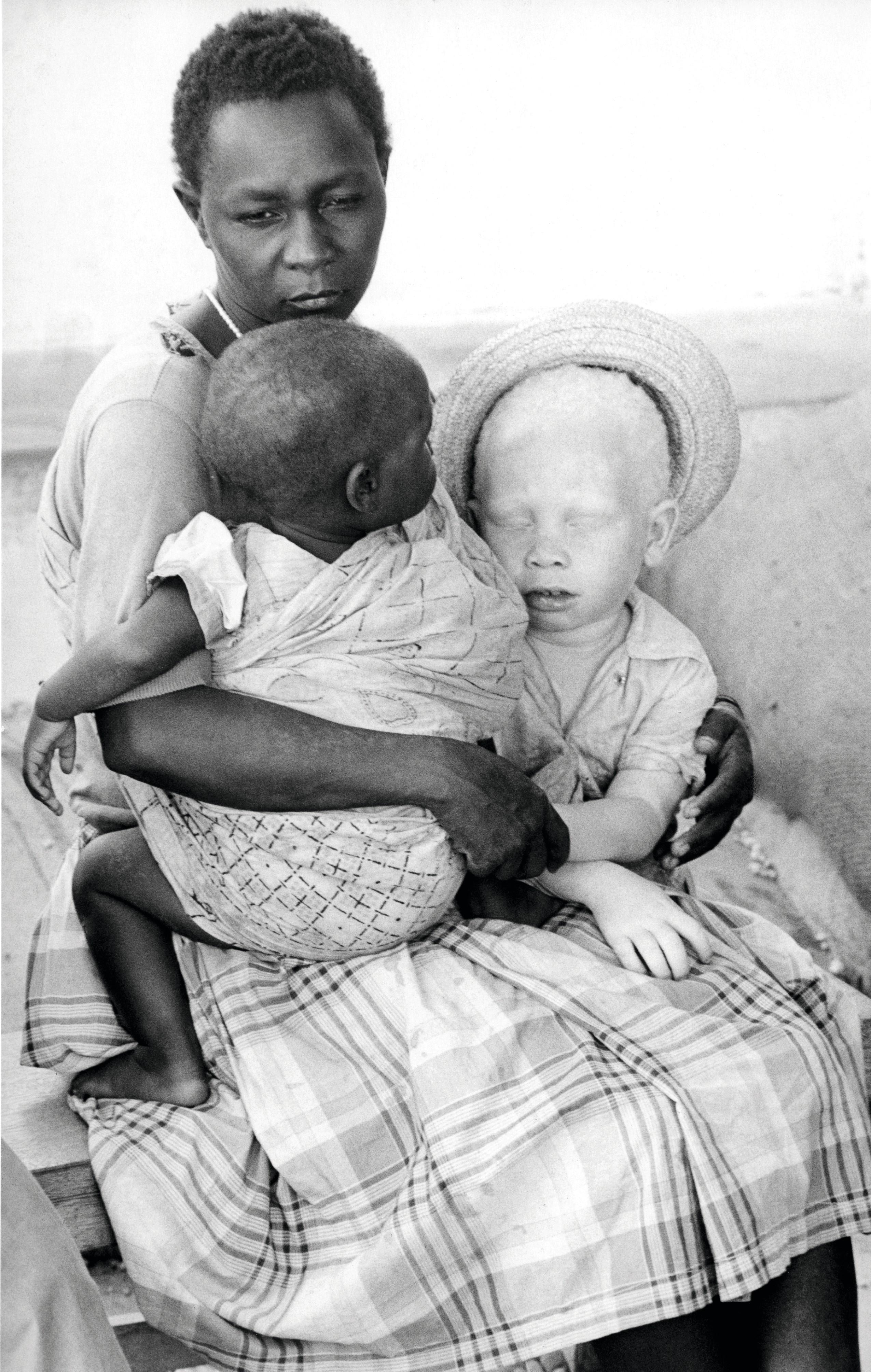 Une mère et ses deux enfants, dont un albinos