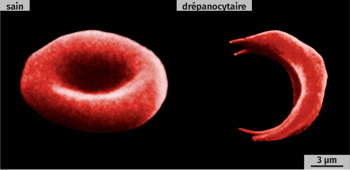 Globules rouges (MEB, images colorisées)