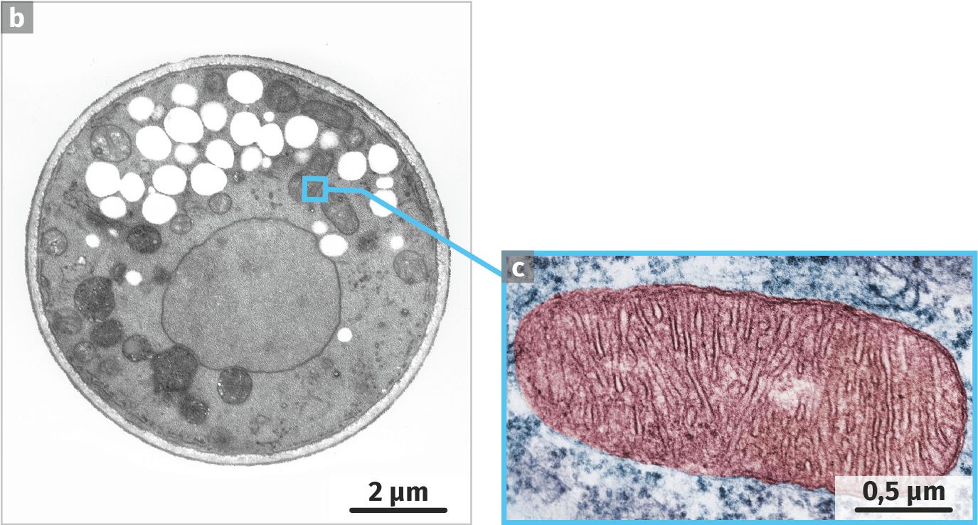 Observation de levures au microscope électronique à transmission