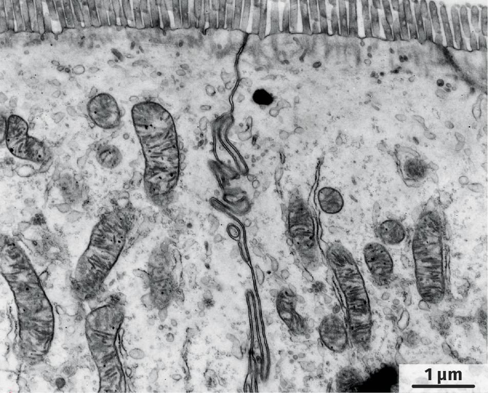 Cellules d'un intestin observées au microscope électronique à transmission