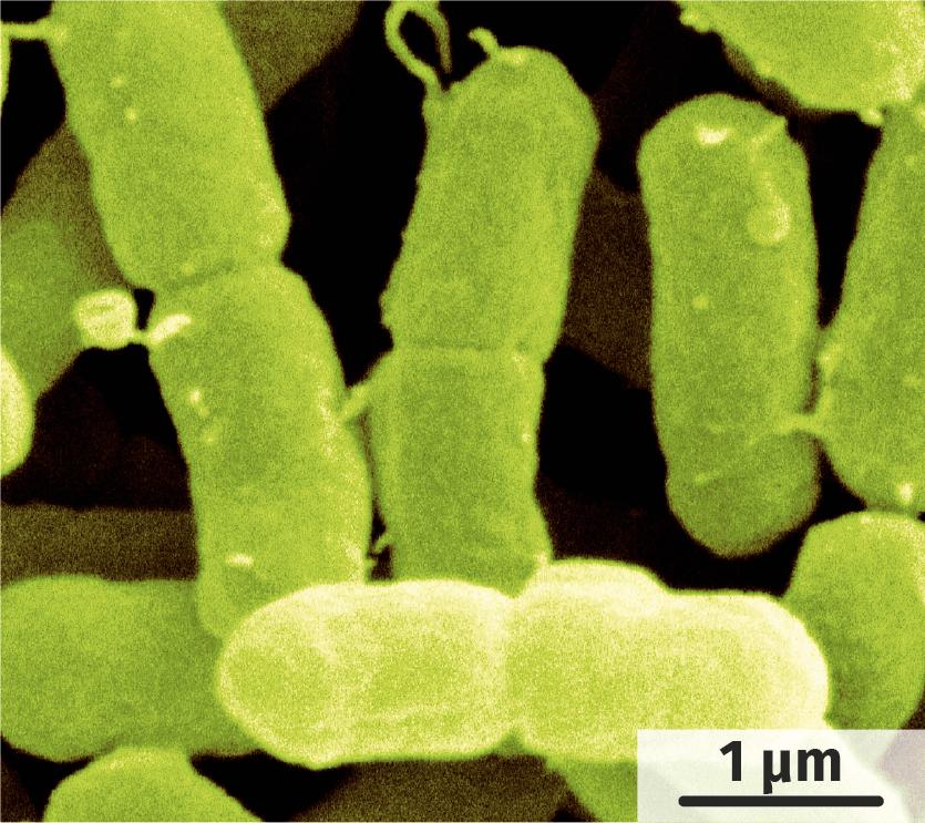 Bactéries Escherichia coli et Enterobacter sakazii observées au microscope électronique à balayage