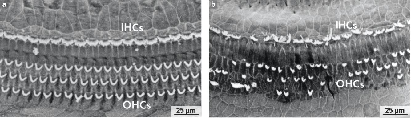 Photographies de la membrane sensorielle de la cochlée avant et après un traumatisme sonore (MEB)